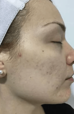 Cosmetic Clinic Laser Clear